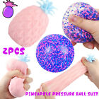 2 Pack Pineapple Stress Balls Toy Squishy Squeeze Stress Ball Sensory Fidget Toy