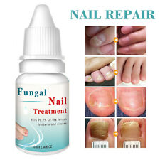 10ML Fungal Nail Treatment Highly Effective Kill Nail Fungus For Best Result UK❤