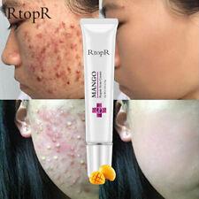 Acne Treatment Cream Anti Acne Scar Removal Pimple Blackhead Repair Skin Care