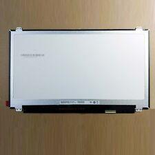 Gigabyte E1500 Notebook LAN Linux