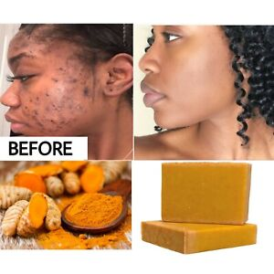 Tumeric Soap, Dark Spots , Skin Glow, Brighter Skin, Scars, All Skin types