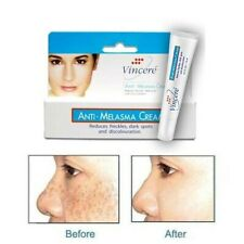 15gVIN21 ANTI-MELASMA CREAM,REMOVE MELAMA,FRECKLES AND DARK SPOTS,SKIN WHITENING