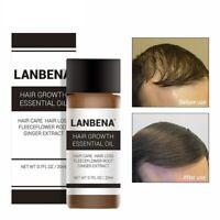 20ml Fast Powerful Hair Growth Essence Products Essential Oil Liquid Treatment