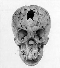 Photo. 1910s.. Human Skull Of Syphilis Victim