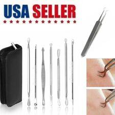 8Pcs Blackhead Acne Spot Comedone Pimple Blemish Extractor Remover Tool Kit US