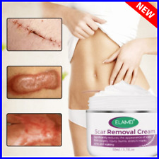 Scar Removal Cream Skin Rebound Repair New Face Cream Acne Spots Acne Treatment