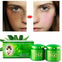 Chic 2pcs/Set Face Whitening Cream Brightening Dark Spot Corrector