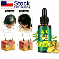 30ml Anti Hair Loss Hair Regrowth Essence Gincger Oil Chinese Herb Treatment