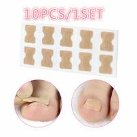 Useful Glue Free Toenail Toe Ingrown Nail Correction Patch Nail Sticker