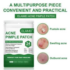 Acne Pimple Patch Face Mask Skin Care Acne Treatment Serum Face Cream Acne CreDo