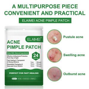 Acne Pimple Patch Face Mask Skin Care Acne Treatment Serum Face Cream Acne  T^mx