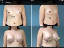 #1 BREAST GROWTH OIL GROW BREASTS REAL RESULTS BREAST ENHANCEMENT,BREAST ENLARGE
