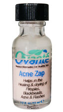 ACNE ZAP Medication Drying Lotion Spot Treatment For Black Heads Pimples & Zits