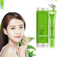 Removal Acne Cream Spots Scar Stretch Marks Treatment Effective Face Skin C D1T0