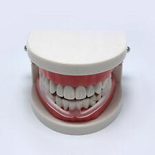 Tooth Grinding+Storage Case  Dental Mouth Guard Bruxism Splint Night Sleep.yu