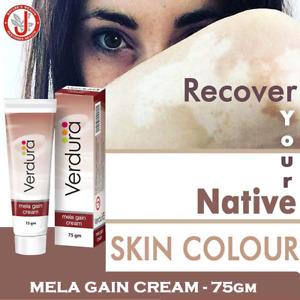 Vitiligo Treatment Natural Skin Repigmentation Therapy - Mela Gain Cream 75gm