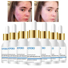 Removal Acne Scar Marks Essence Cream Treatment Dark Spot Face Care Whitening