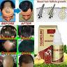 Hair Growth Essence Dense Regrowth Ginger Serum Oil Anti Loss Treatment O0I0
