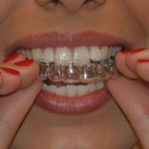 Teeth Whitening / Clear Bleaching Trays Custom Fit  FAST DISPATCH UK .FREE CASE