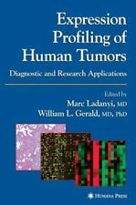Expression Profiling of Human Tumors: Diagnostic and Researc