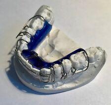Zahnspange blau OK mit Gips-Modell