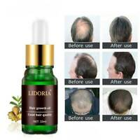 10ML Fast Hair Growth Essential Oil Scalp Treatment Nourishing Repairing Serum