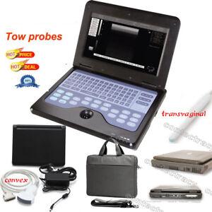 Portable laptop machine Digital Ultrasound scanner,3.5 Convex,7.5M linear probe