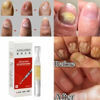 Treatment Pen Onychomycosis Removal Essence Foot Care Bright Nail Repair Liquid