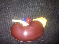human vintage anitomacal Kidney