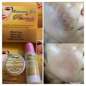 2 In 1 Melasma Toner Sunblock Cream Birightening Anti-Acne Dark Spot Whitening