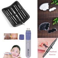Electric Blackhead Vacuum Suction Acne Remover Face Pimple Pore Comedone Machine