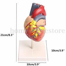 Plastic Anatomical Medical Larynx Model Human Heart Teaching Cardiac 10x10x21cm