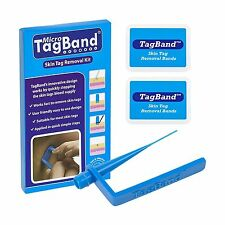 Micro TagBand Skin Tag Remover Device for Small to Medium Skin ... Free Shipping