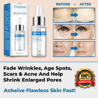 NEW GLYCOLIC ACID SKIN FACE PEEL 100% PURE ACNE SCARS WRINKLES ANTI-AGING PORES
