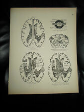 NERVOUS SYSTEM #78~ Rare Vintage Print From Descriptive Atlas of Anatomy 1880