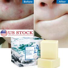 100G Sea Salt Handmade Soap Cleaner Removal Pimple Pore Acne Treatment Goat Milk