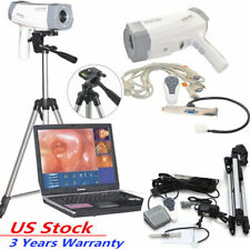 Electronic Colposcope Vaginoscopy Interference 800,000 pixels Color Digital CCD