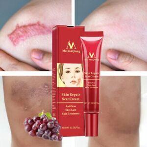 Acne Removal Face Skin Care Whitening Cream Anti Scar Spots Stretch Repair Marks