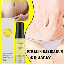6Ml Stretch Marks Repair Cream Scar Acne Removal Streaks Skin Care Lotion