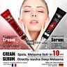 Melasma Chloasma Spot Freckle Skin Whitening Brightening Lightening Cream Serum