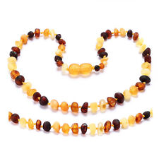 Baltic Amber Teething Necklace for Baby - Simple Package
