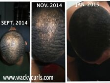 "STIMULATE HAIR GROWTH- HAIR RESTORATION OIL""WACK-OIL"" (100% ORGANIC ARGAN OIL)"