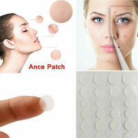 36Pcs Invisible Acne Pimple Patches Face Spot Scar Skin Care Treatment Stickers