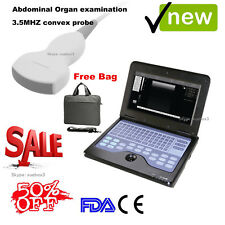CE Digital Portable Laptop Ultrasound Scanner 3.5 Convex Probe Machine For Human