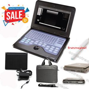 CE CMS600P2 Ultrasound Scanner laptop Machine 6.5M transvaginal Probe for human