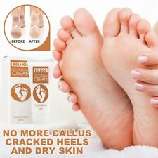 Foot Cream Softens the Dead Skin on the Soles of the Feet Exfoliating Calluses