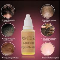 Aceite De Jengibre Para Hacer Crecer El Cabello 100% Natural Tratamiento