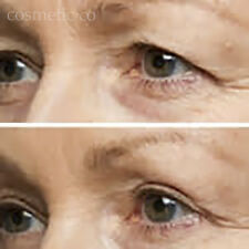 INSTANT UPPER EYELID LIFT- TRANSPARENT- TAKE 10 YEARS OFF YOUR AGE NOW!