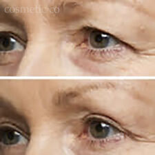 INSTANT UPPER EYELID LIFT- TRANSPARENT- Comfortable- TAKE 10 YEARS OFF YOUR AGE!