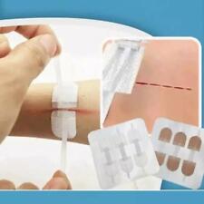 3PCS Fast Stitch Zipper Band-Aid HIGH QUANLITY